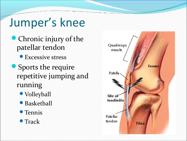 A look at sports injuries – Basketball  (Jumpers Knee)